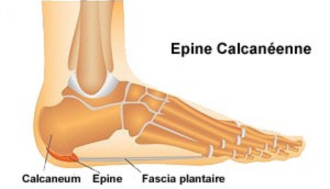 epine calcanéenne
